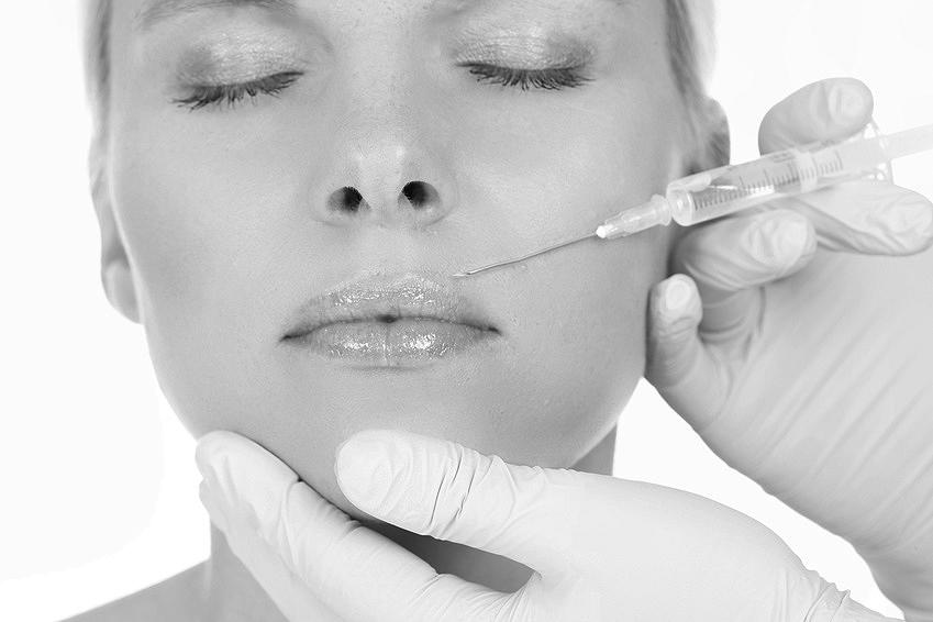 Junge blonde Frau erhält Faltenbehandlung gegen Lippenfältchen